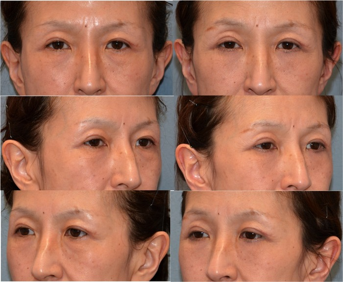下眼瞼ハムラ経皮法