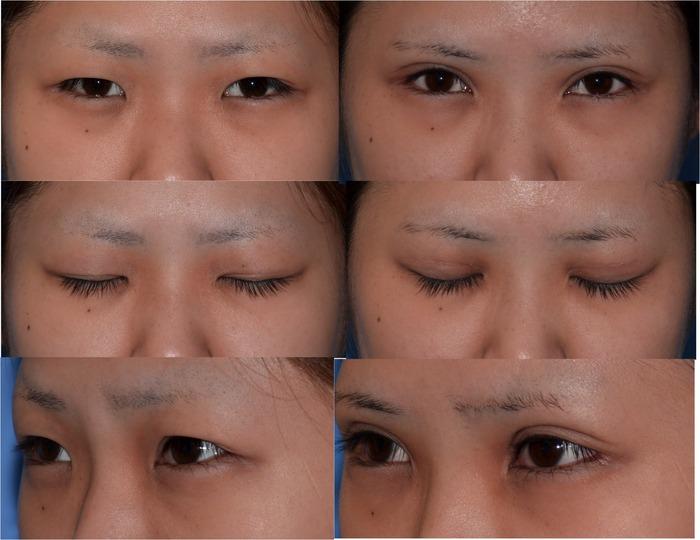 目頭切開目尻切開眼瞼下垂下眼瞼下制術