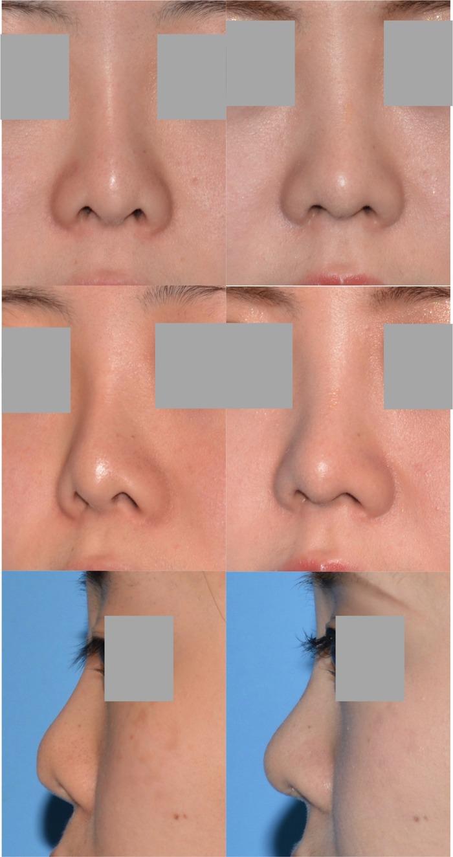 鼻中隔延長術 鼻孔縁下降術 隆鼻術 術後1ヶ月 拡大像