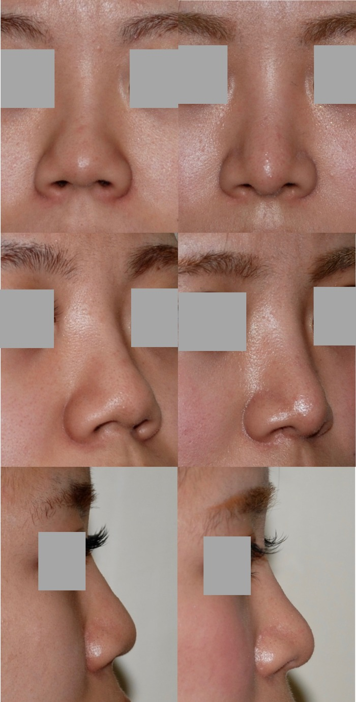 鼻中隔延長術 術後8ヶ月 拡大