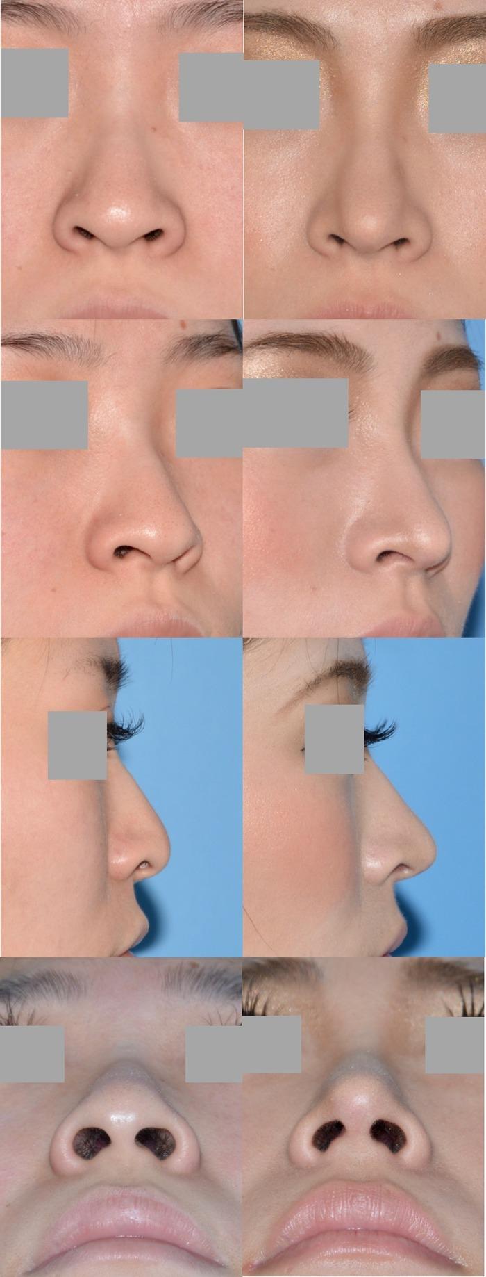 鼻尖縮小術 術後1ヶ月 拡大