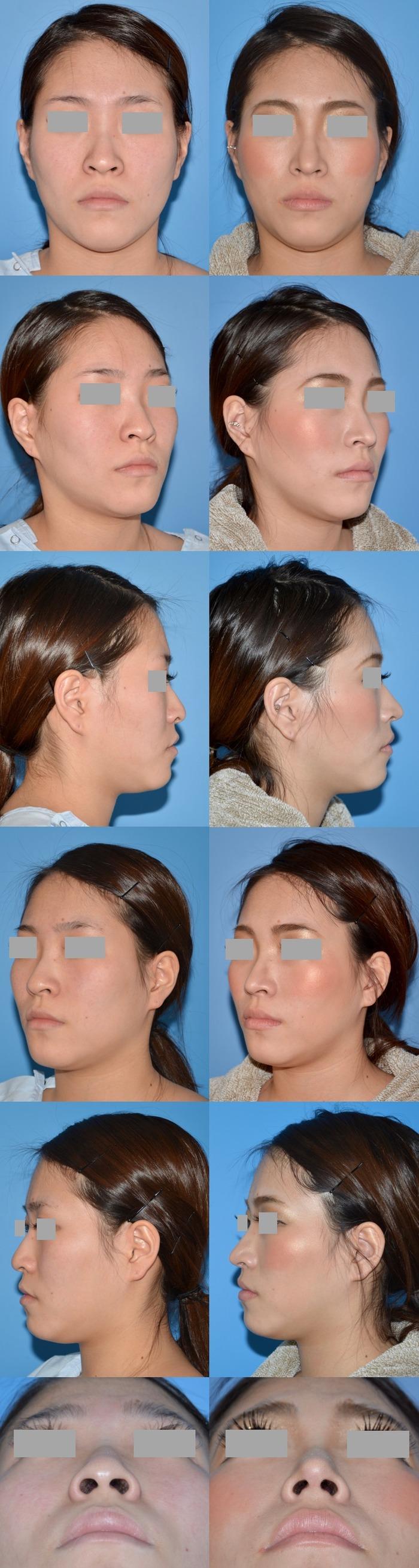 鼻尖縮小術 術後1ヶ月