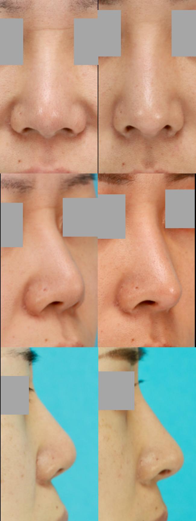 鼻中隔延長術 隆鼻術 術後4ヶ月 拡大