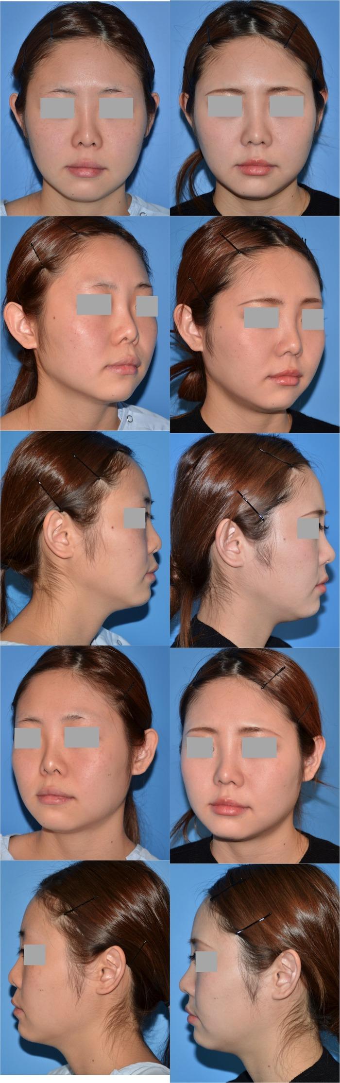 鼻中隔延長術 鼻孔縁下降術 隆鼻術 術後1ヶ月