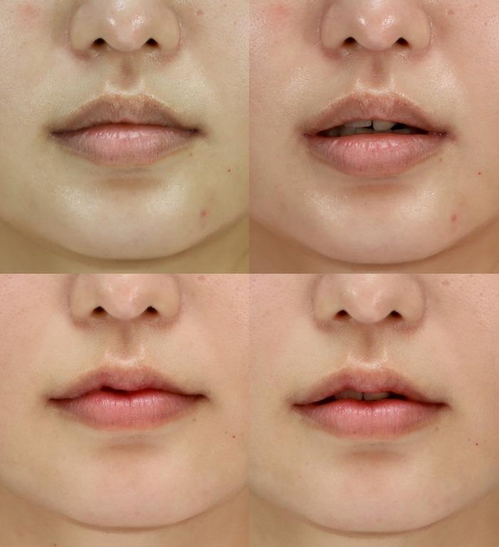 口唇縮小術 術後1ヶ月 拡大