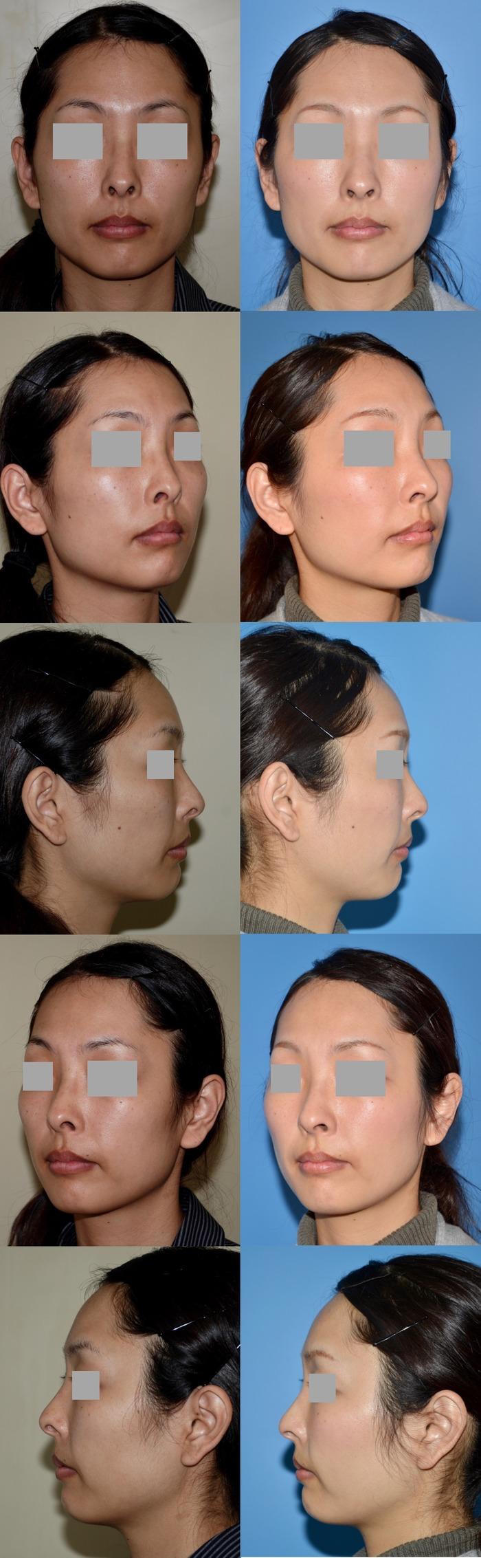 鼻孔縁下降術 術後3ヶ月