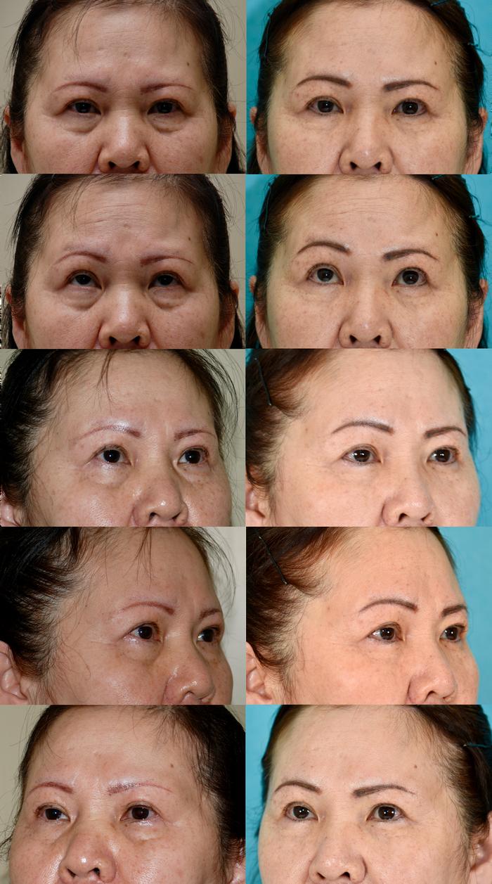 下眼瞼経結膜ハムラ法 1年6ヶ月