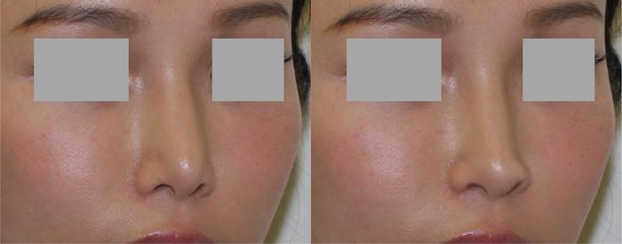 鼻2Dシミュレーション側面