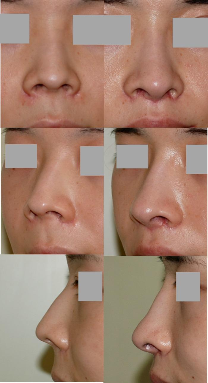鼻中隔延長術 鼻骨骨切り術 鼻下長短縮術 口角挙上術 拡大