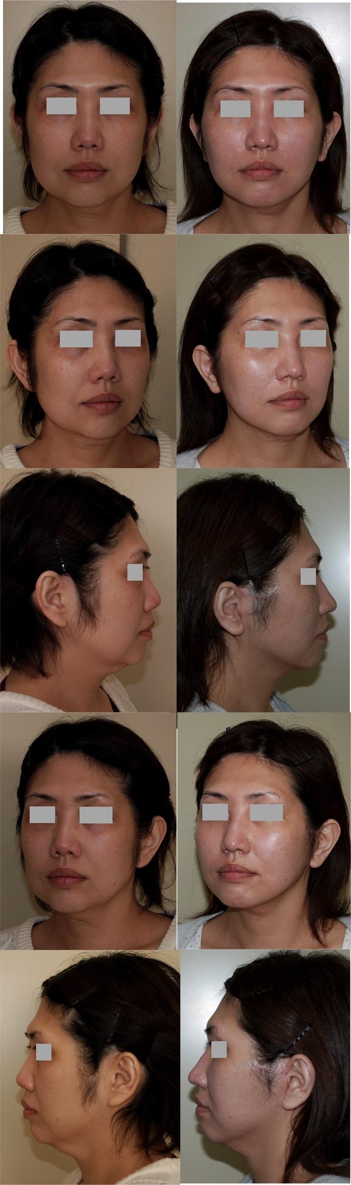 フェイスリフト鼻中隔延長術