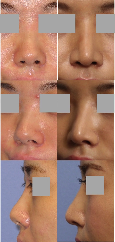 鼻中隔延長術 隆鼻術 1ヶ月 拡大