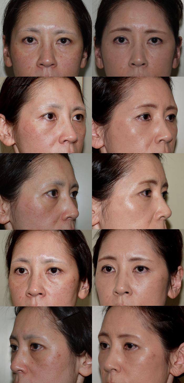下眼瞼経結膜ハムラ法 脂肪注入 術後15ヶ月