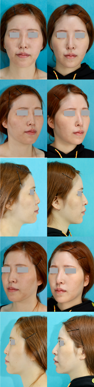 鼻中隔延長術 隆鼻術 シリコンプロテーゼ入替え 術後3ヶ月