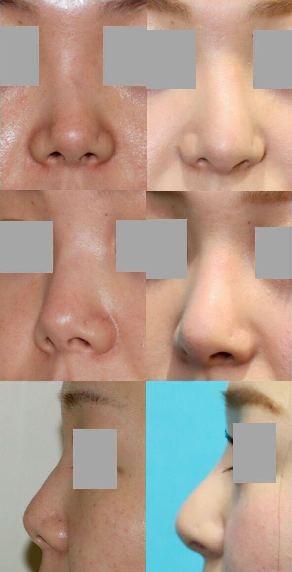 鼻中隔延長術、隆鼻術 術後5ヶ月 拡大