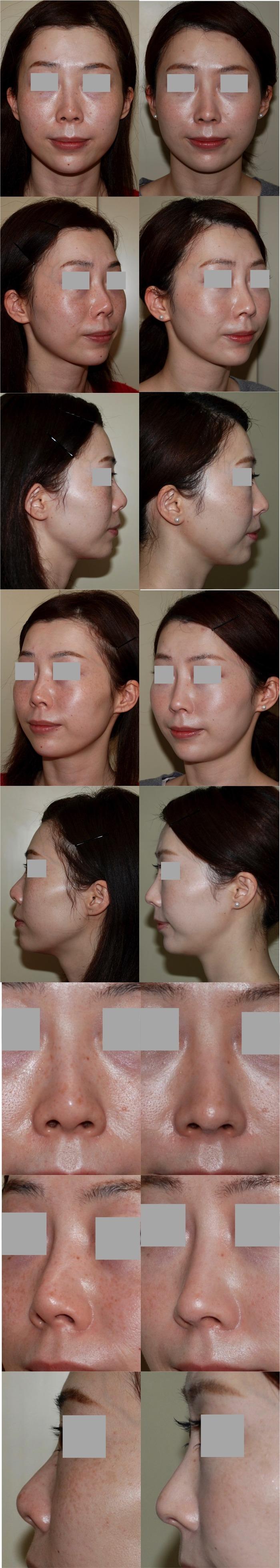 鼻中隔延長 隆鼻術 術後3ヶ月
