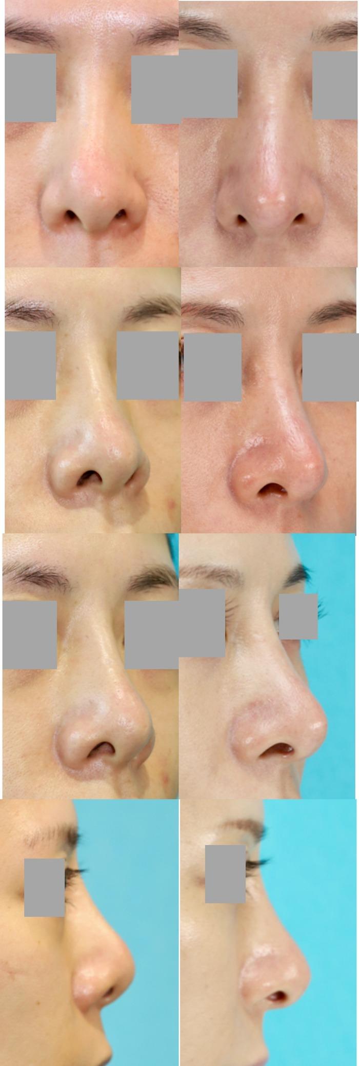 鼻中隔延長術、隆鼻術(プロテーゼ入れ替え)術後5ヶ月 拡大像