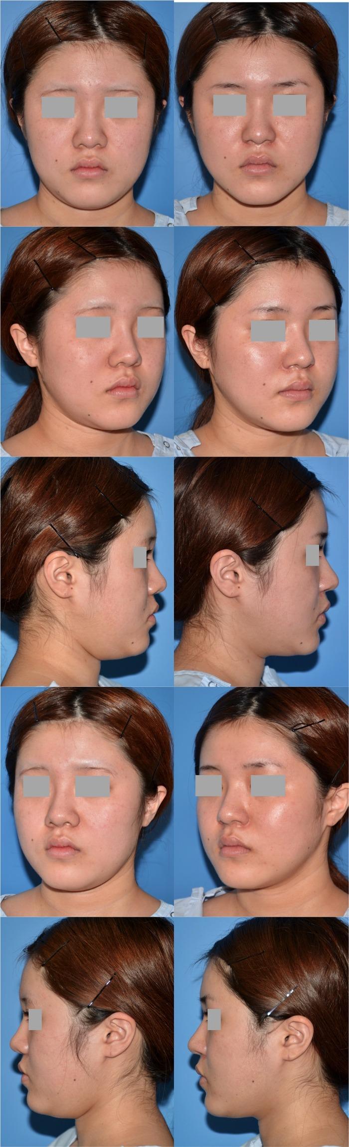 鼻中隔延長 鼻翼挙上 鼻翼縮小 鼻プロ 全体5ヶ月