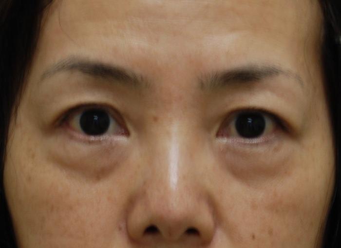 下眼瞼ハムラ法 術後3ヶ月 拡大ライトなし