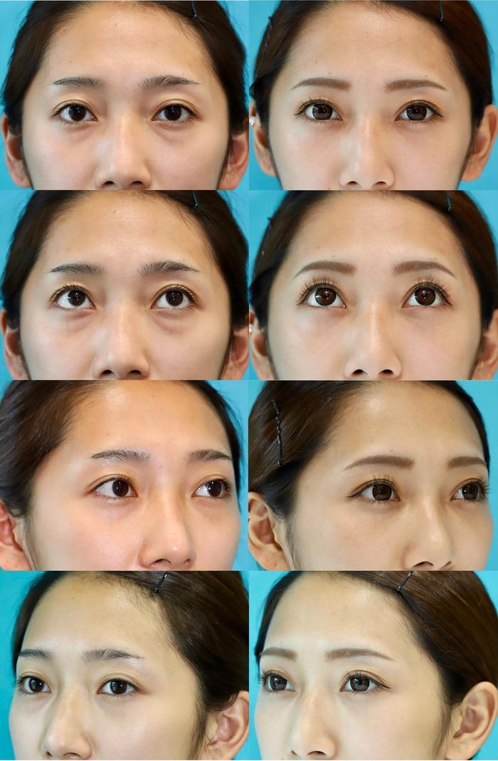 下眼瞼経結膜ハムラ法  術後3ヶ月 20200809