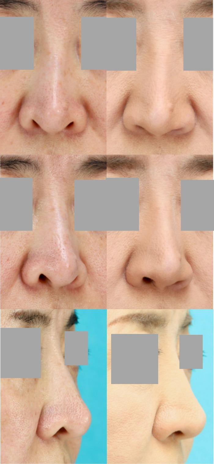 鼻孔縁下降術 術後4ヶ月 拡大