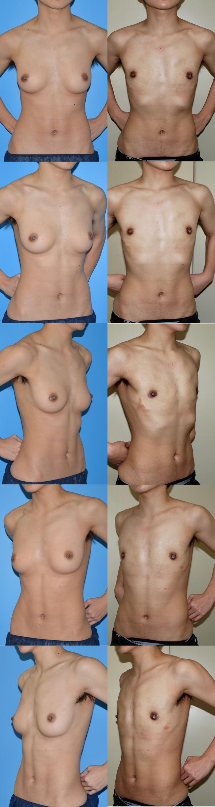 乳腺切除hy 術後3ヶ月