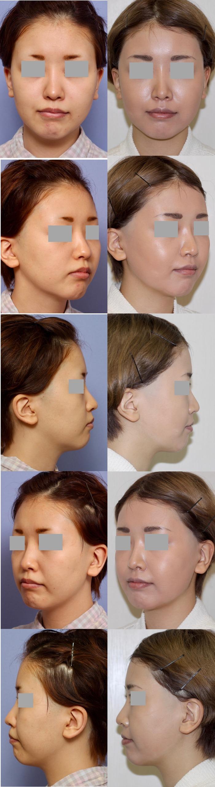 鼻尖縮小 鼻プロテーゼ位置修正