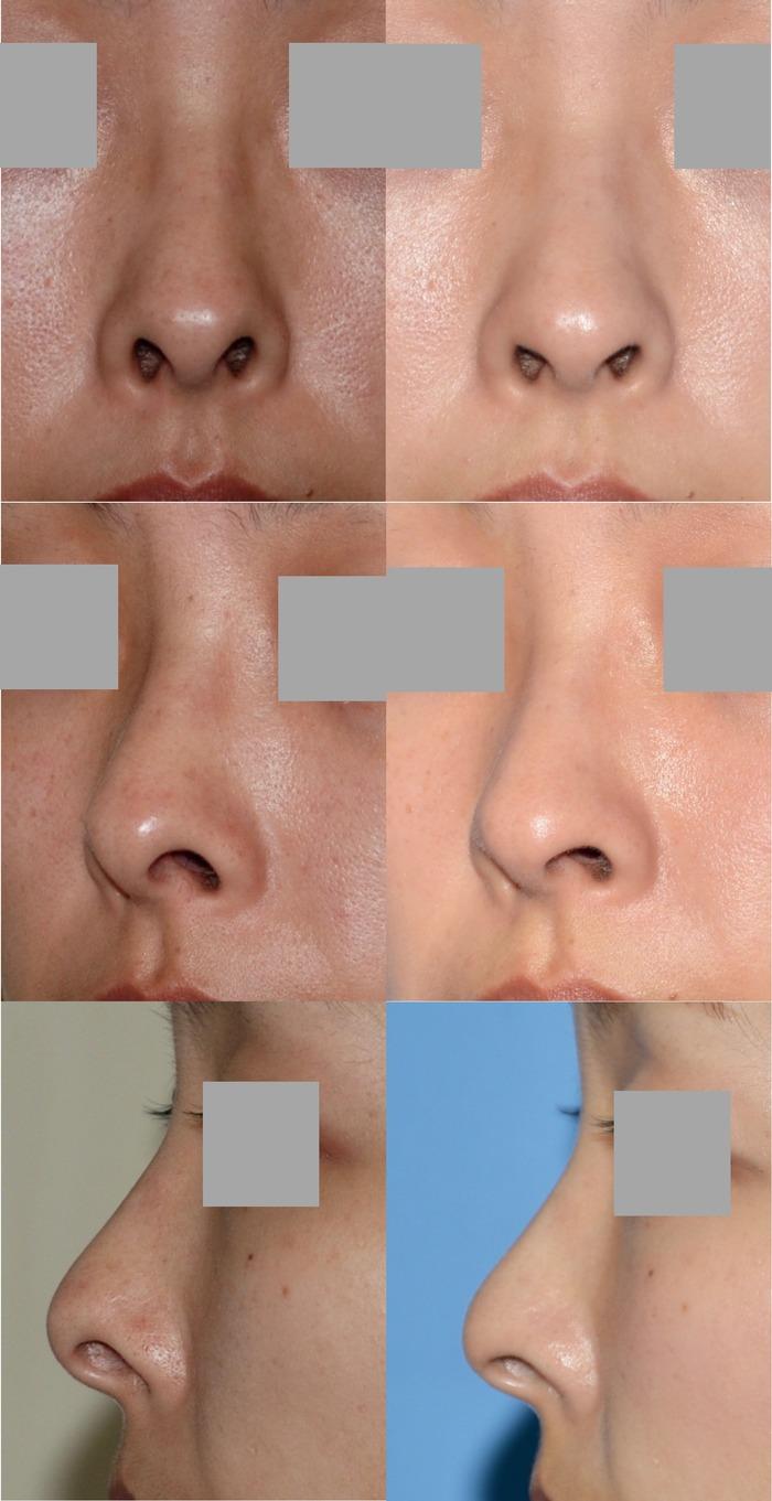 鼻孔縁下降術 拡大 術後3ヶ月