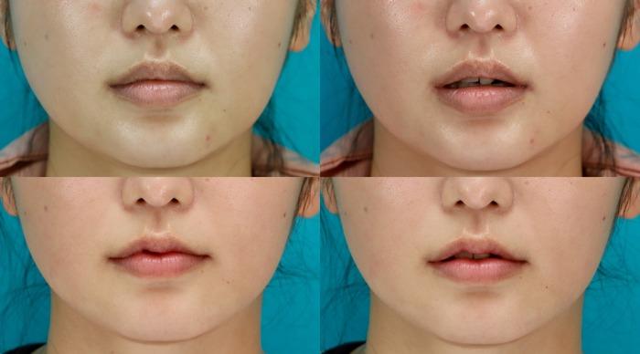 口唇縮小術 術後1ヶ月
