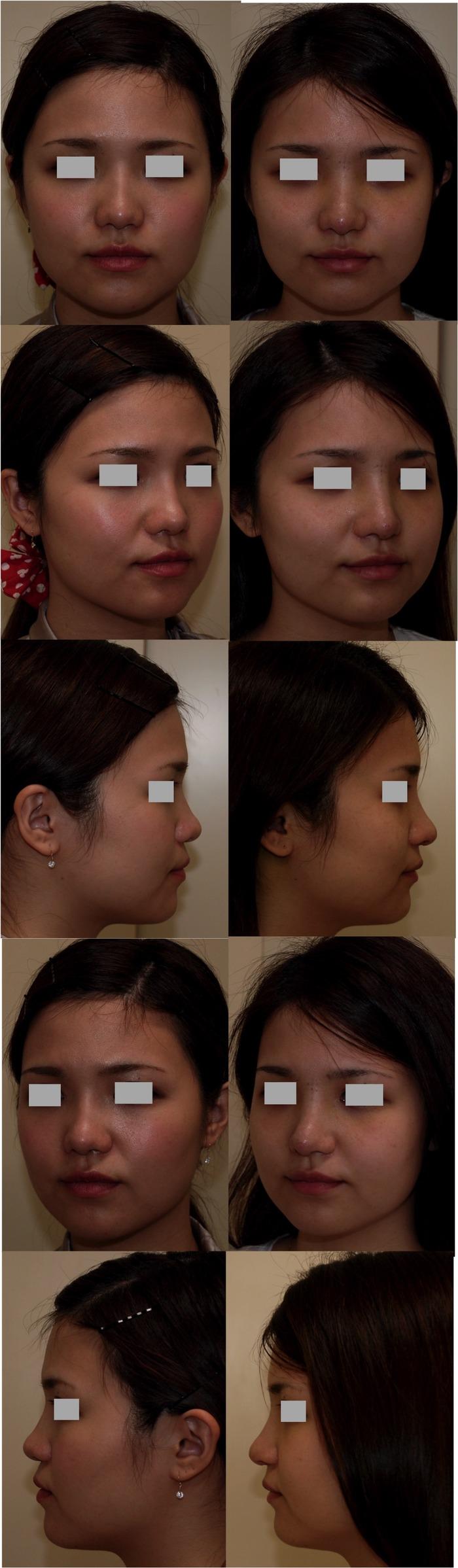 鼻中隔延長術 鼻プロ入れ替え