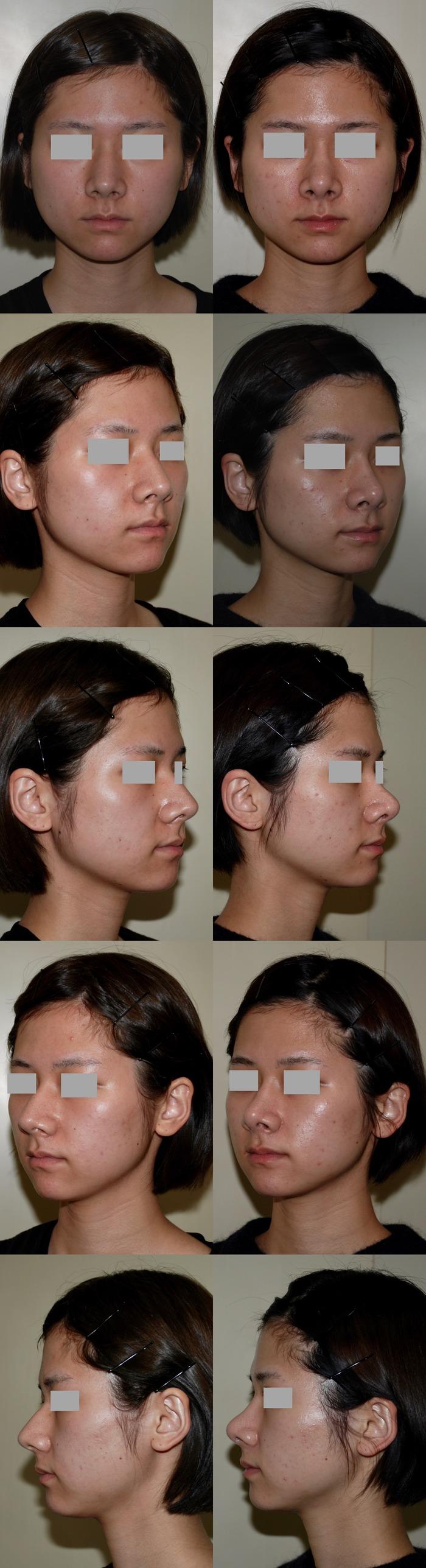 鼻骨骨切り術 鼻尖挙上術 鼻尖縮小術