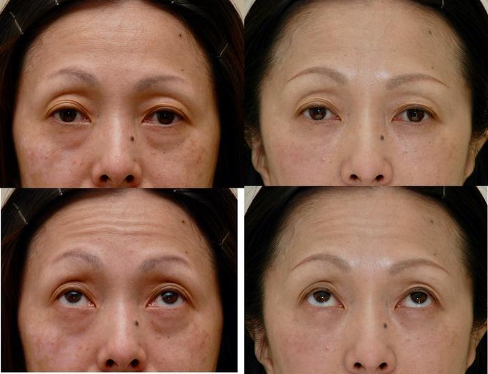 下眼瞼経結膜ハムラ術後2ヶ月 フラッシュ無し