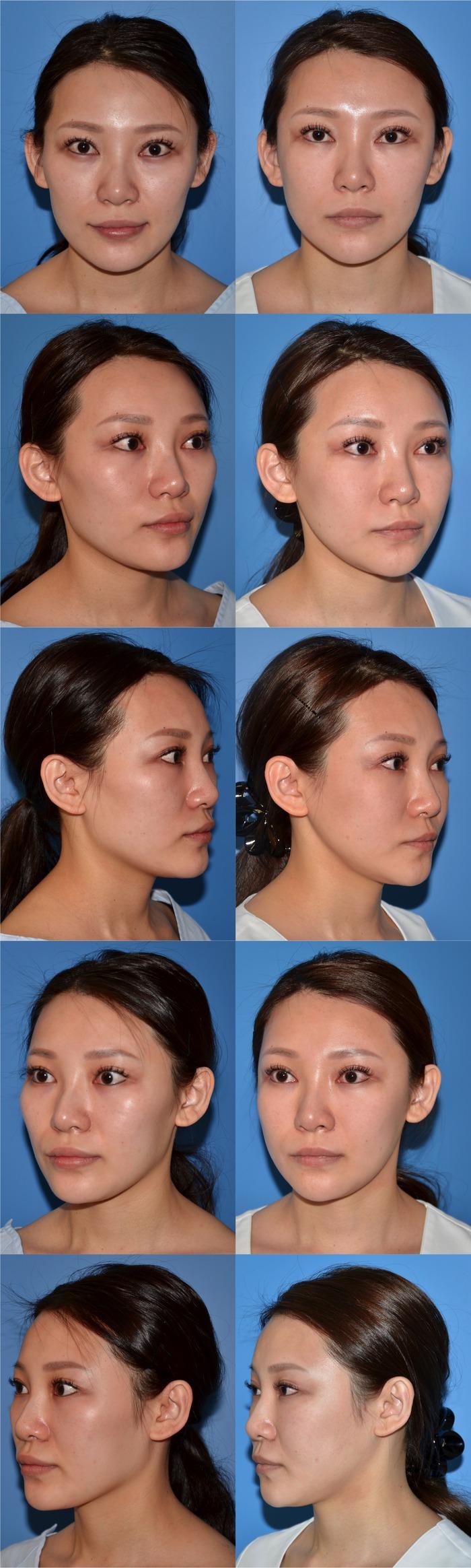 二重埋没法 顔脂肪注入 頬骨エラ顎削り術後 6ヶ月