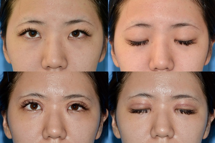 眼瞼下垂 目頭切開術後1週間