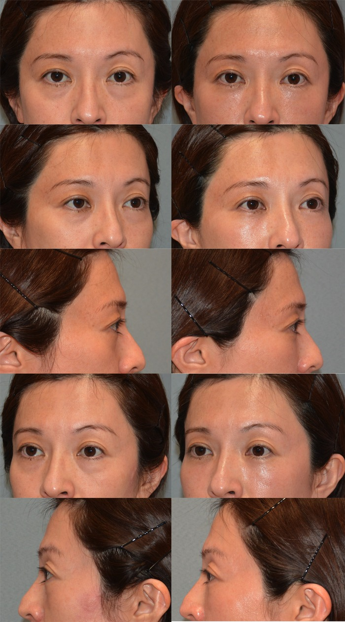 下眼瞼経結膜ハムラ法7