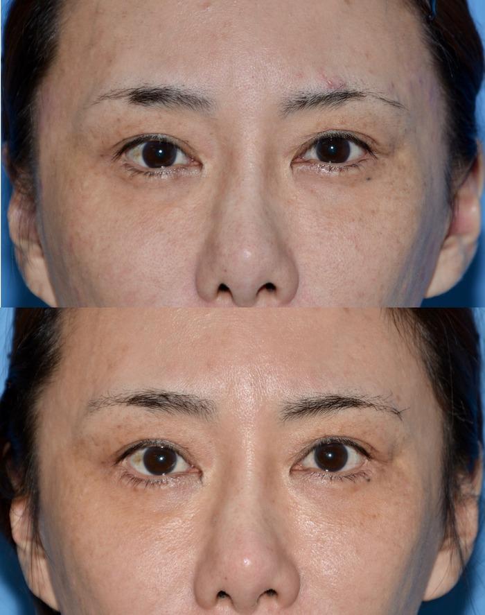 下眼瞼下制術 術後5ヶ月
