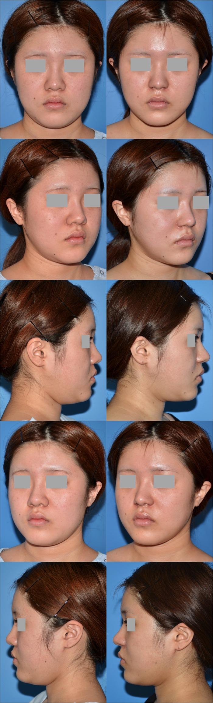 隆鼻術 鼻中隔延長術 鼻翼縮小術 KN  術後1ヶ月