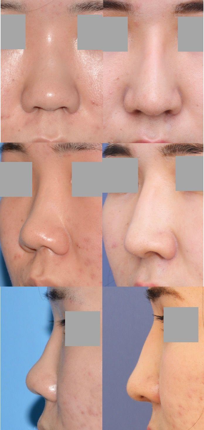 鼻中隔延長術 隆鼻術 術後8ヶ月 拡大