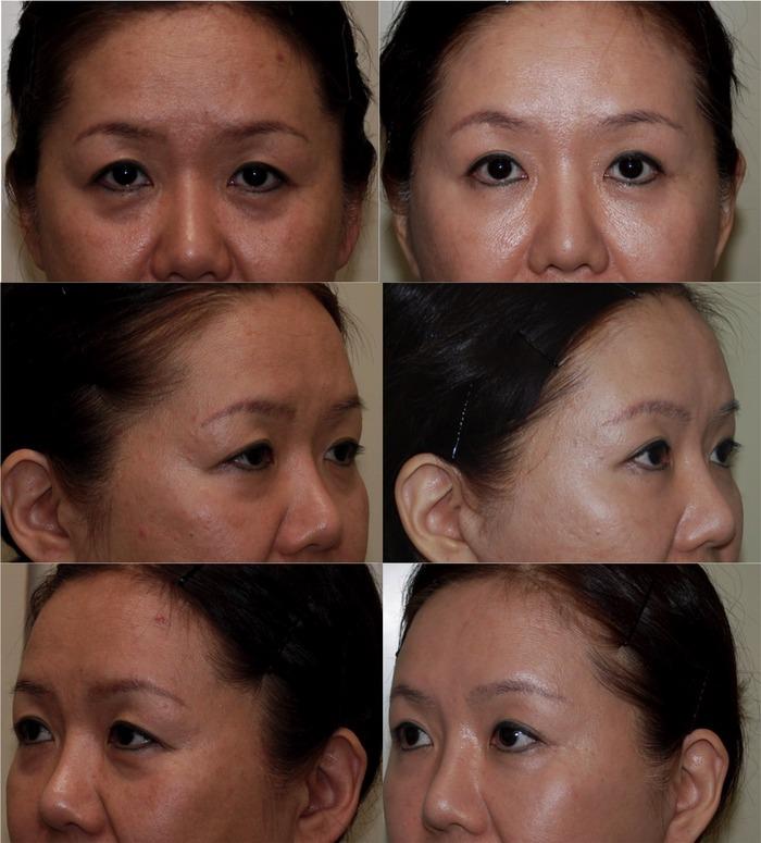 眉毛下切開 下眼瞼経結膜ハムラ法