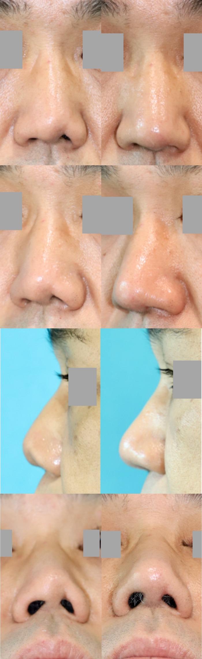鼻中隔延長術 左鼻孔縁形成術 術後3ヶ月 拡大