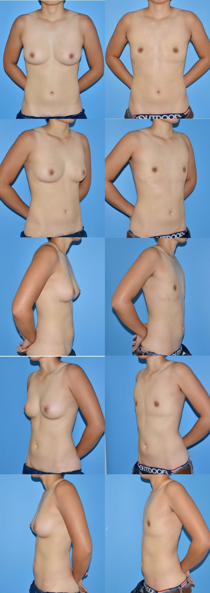 乳腺切除ns 1ヶ月