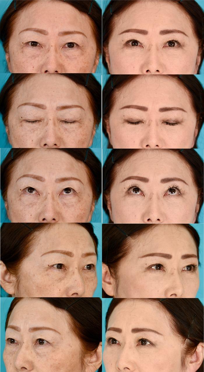 眉毛下切開、下眼瞼経結膜ハムラ法 3ヶ月 経過