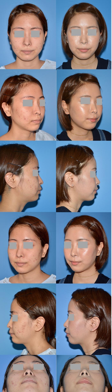 鼻修正術後 全体像