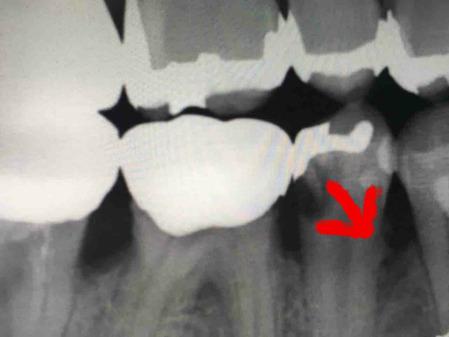 右下第一小臼歯