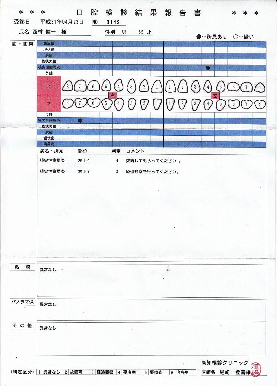歯の検査結果・2019年4月13日