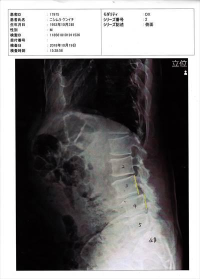 腰椎の変形1019_NEW_R