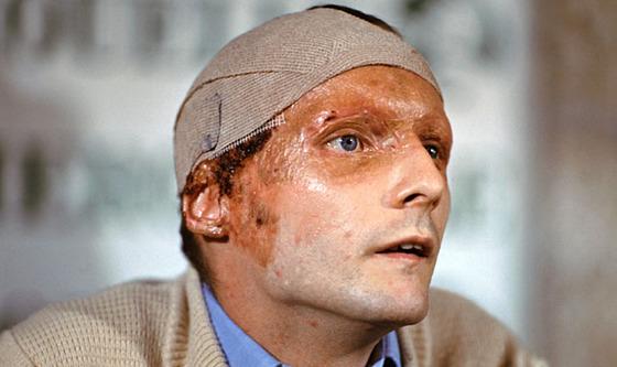 ニキ・ラウダ、1976年事故後の共同記者会見