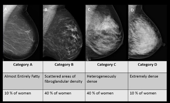 dense-breast-tissue-chart-600