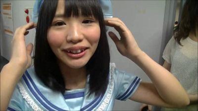 こあみの上げた松村の頭皮画像がシャレにならない件【SKE48/松村香織】