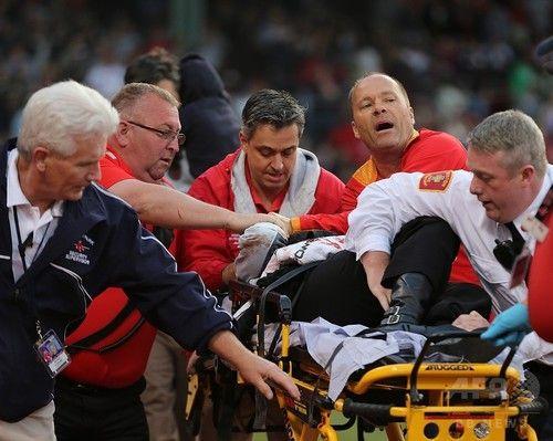 【エンタメ画像】【悲報】折れたバットが観戦していた女性の頭を直撃して「生命に関わる重傷」…(画像あり)