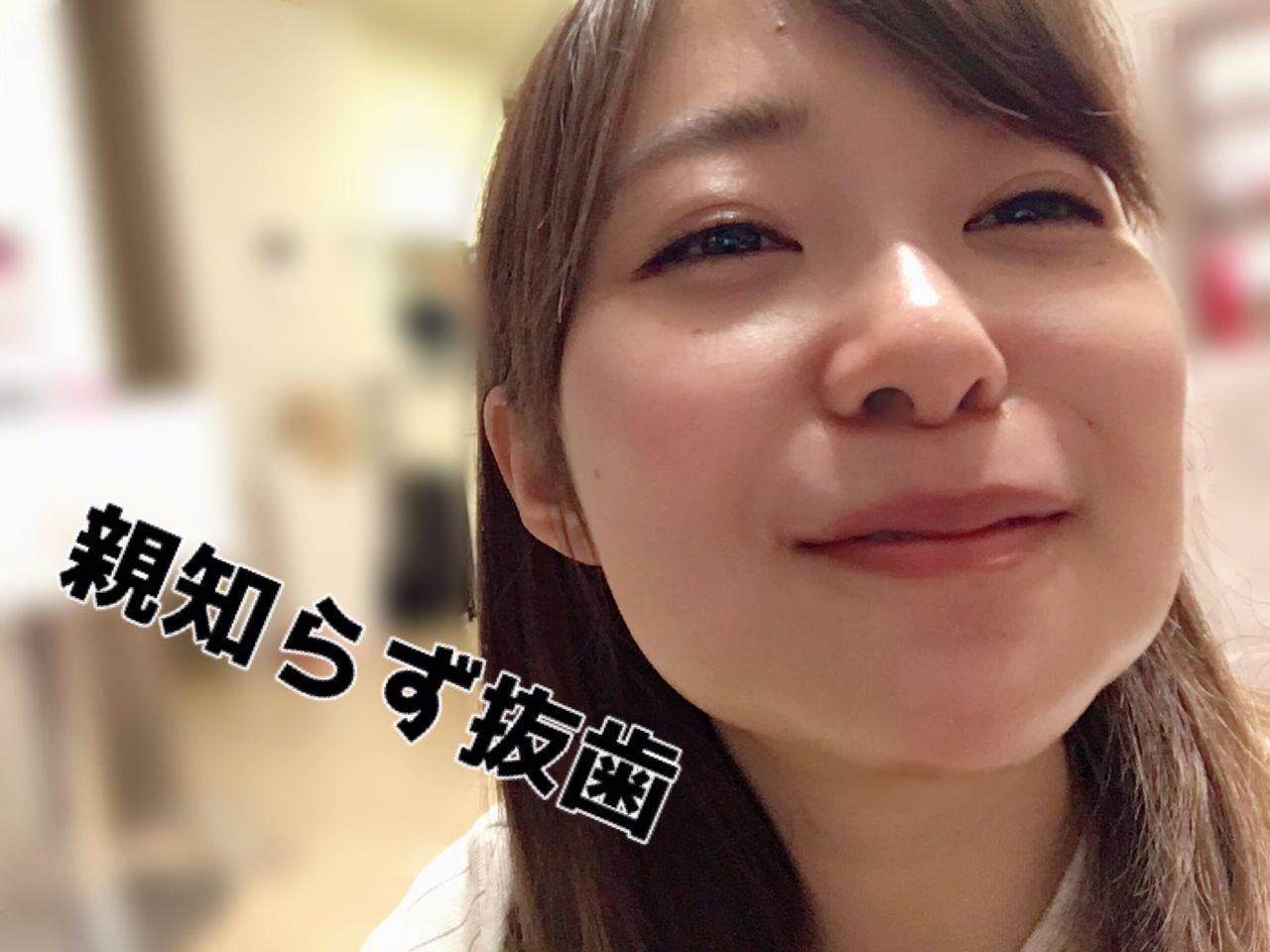 【エンタメ画像】【悲報】指原莉乃、抜歯で顔面崩壊!!!!!!!!!!(画像あり)